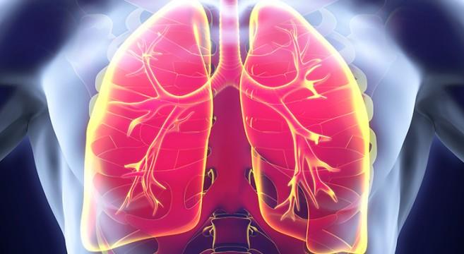 pluca-tuberkuloza-657x360