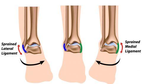 ankle_sprains