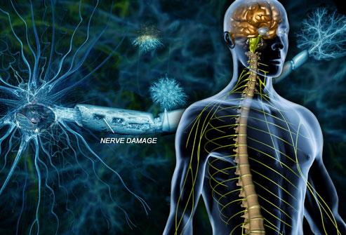 webmd_rm_photo_of_nerve_damage